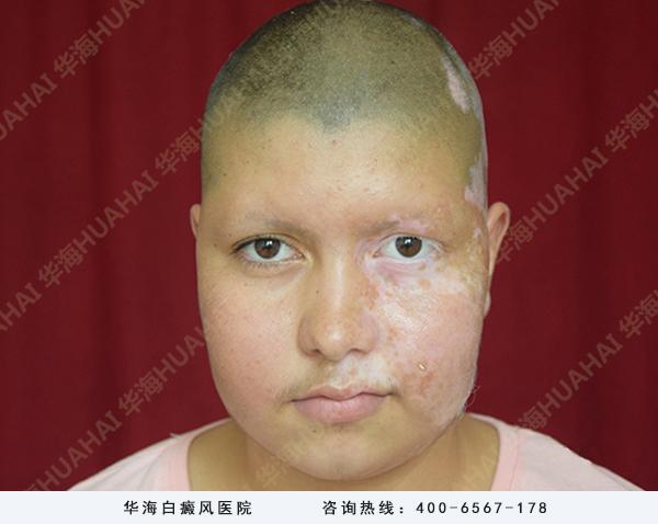白癜风姑娘克木尤面部白斑治疗中